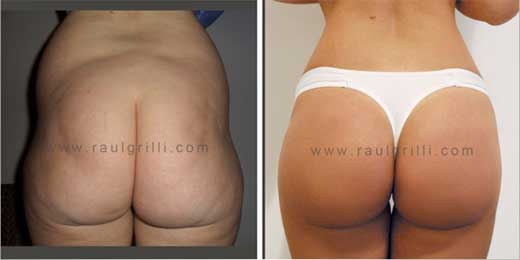Prótesis glúteasRaúl Grilli | grilli | gluteos | lipoaspiración ...