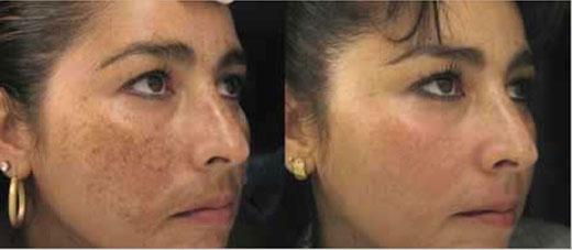 Tratamiento De Manchas Con Luz Pulsada Ipl Melasma Ipl