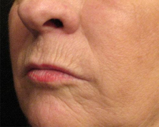 Por qué las mujeres envejecen más alrededor de los labios que los hombres