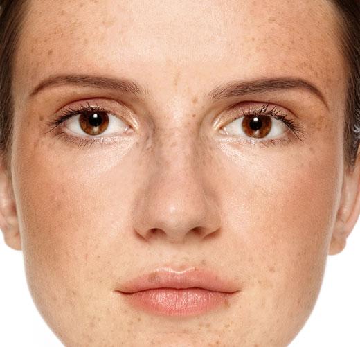 Las manchas de pigmento seniles en las manos de la causa y el tratamiento de la foto